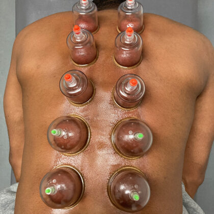 Cupping at Somatic Nature Physical Therapy and Wellness - Mission District